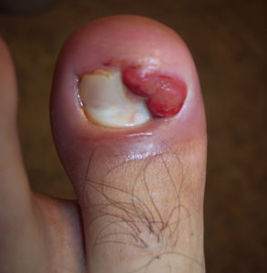 severe ingrown toenail